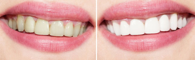 Egham-Dental-Care---Tooth-Whitening-Before-After
