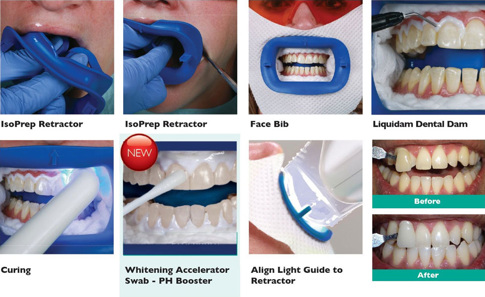 ZoomWhitening Step by Step